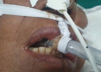 Pacientes intubados no Cero da Zona Leste estão com larvas na boca, uma violação à dignidade humana, denuncia o Coren